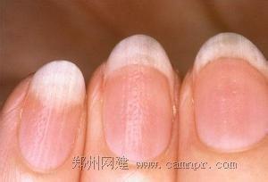 指甲有竖纹的成因及治疗方法